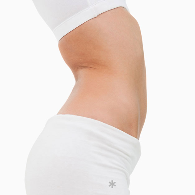 Abdominoplasty (Tummy)