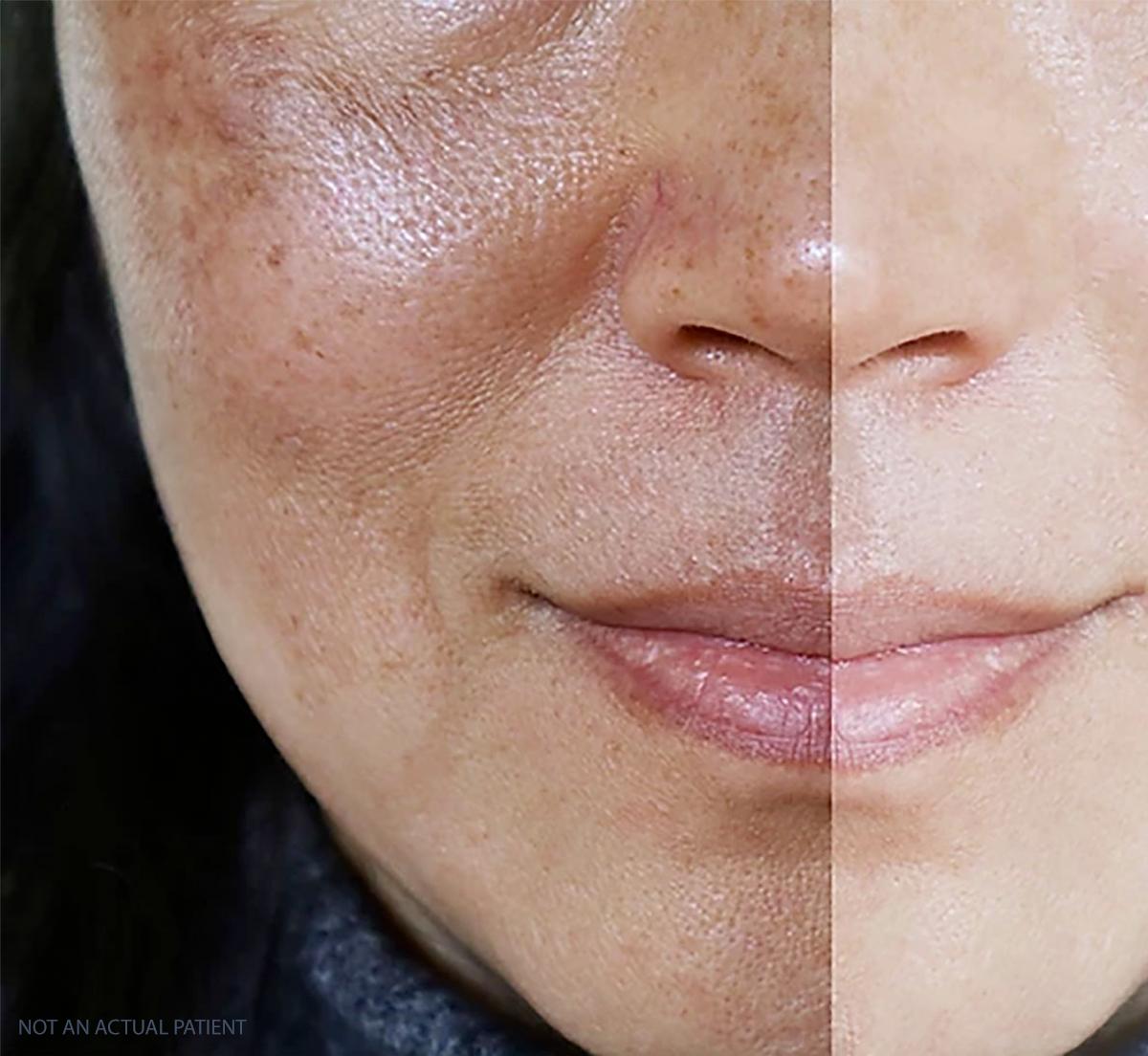 Developing brown, splotchy skin? It may be malasma.