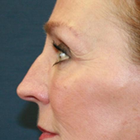 Blepharoplasty (Eyelid)