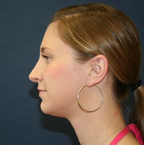 Rhinoplasty (Nose)