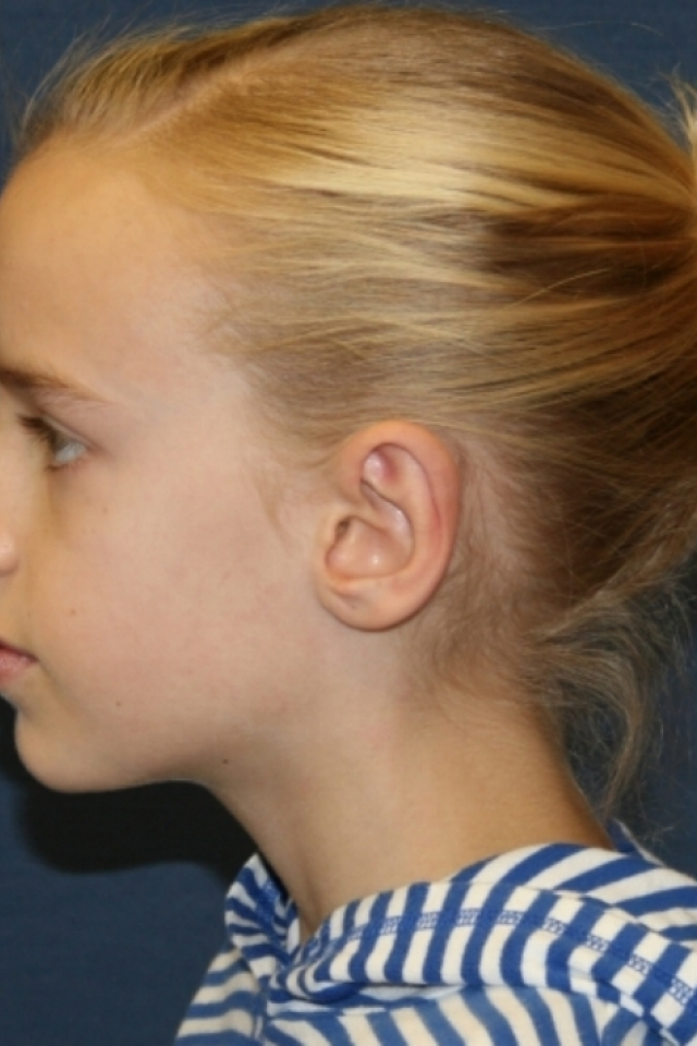Beals Syndrome Ears